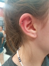 Helix (Cartilage)